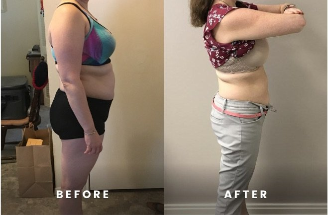 Rapid Weight Loss Before and After